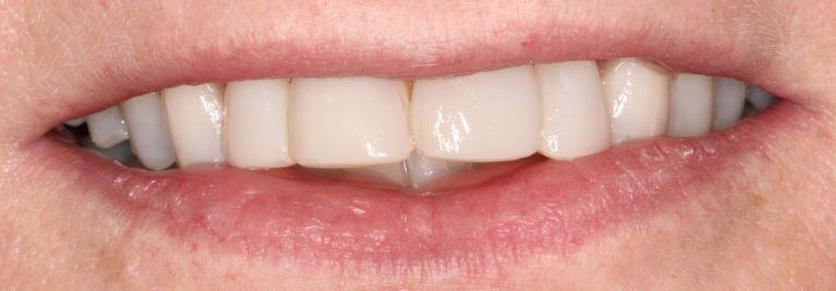 Resin-Veneers-After-Image