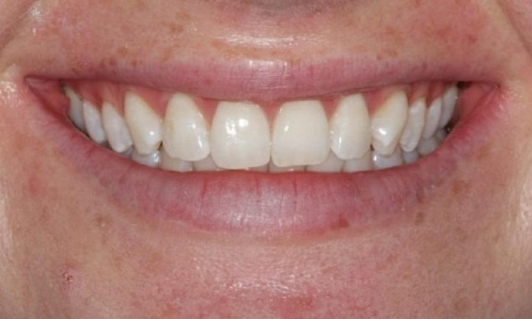 Zoom-Whitening-After-Image