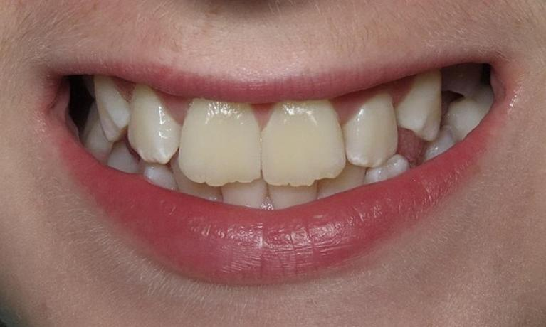 Braces-Before-Image