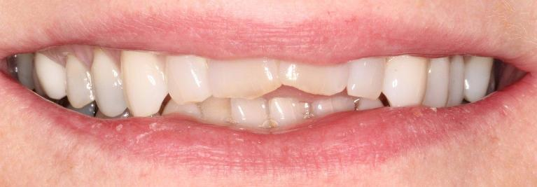 Resin-Veneers-Before-Image