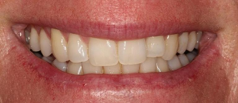 Zoom-Whitening-Before-Image